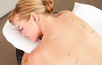 acupuntureTherapists